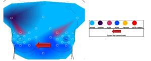 Infrarood overzicht borstthermogram